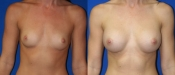 Breast Augmentation 6
