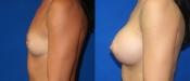 Breast Augmentation 6B
