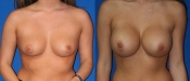 Breast Augmentation 14A