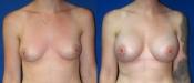 Breast Augmentation 11A