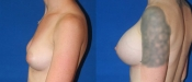 Breast Augmentation 11B
