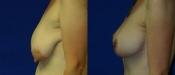 Breastlift 2B