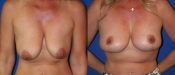 Breastlift 3A