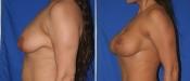 breastlift5b.jpg