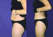 Tummy Tuck 1B