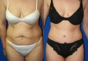 Tummy Tuck 5 Front